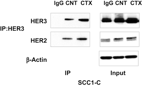 her3 targeting sensitizes hnscc to cetuximab by reducing her3