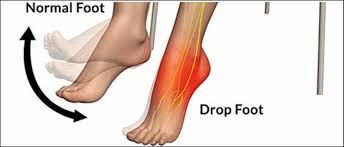 Foot Anatomy Nerves Foot Drop The Causes And Anatomy