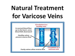 natural treatment for varicose veins in hindi iव र क स