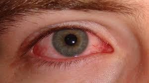 Does Vaseline Help Eyelashes Grow How To Make Your Eyelashes Grow Longer Naturally