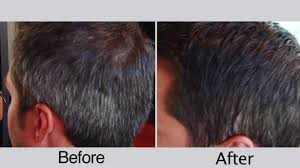 before and after men u0027s hair color for covering gray hair youtube