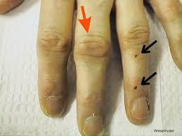 systemic lupus erythematosus larger slides figure4