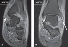 Ankle Ligament Tear Mri The Ankle Musculoskeletal Key