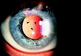 light streaks after cataract surgery nd yag laser posterior capsulotomy american academy of ophthalmology