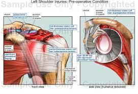 Human Shoulder Diagram Left Shoulder Injuries Pre Operative Condition Medical