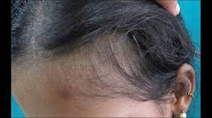 telogen effluvium leads to hair loss treatment options youtube
