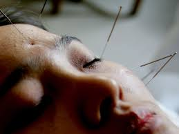 study of acupuncture for low acupuncture for lower back no more effective than sham