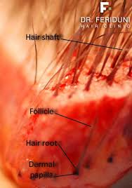 red pubic hair pictures hair anatomy