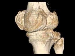 3d Knee Anatomy Irad Ka 3d Reconstruction From Ct Data Human Knee Joint Radiologie