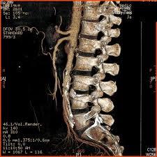 Abdominal Anatomy Quiz Abdominal Vessels Radiological Anatomy Quiz