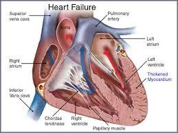 Webmd Human Anatomy Apassionforscience 2014 1e1 Group 6 Heart Disease