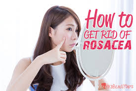 how to get rid of rosacea naturally hira beauty tips