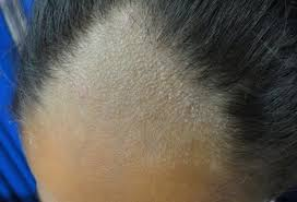 pubic hair disappearing 3 fungal infections that cause hair loss and how to stop them