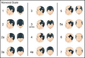 different types of receding hairlines receding hairline process xd gents hairstyles pinterest hair