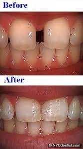 light cure composite filling bonding gaps between teeth with high end cosmetic dentistry