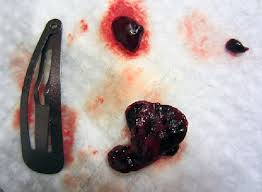 light period with clots blood clots during period jelly like big with pain white tissue