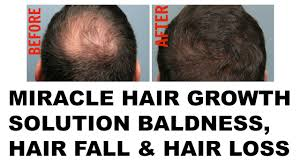 hairstyle best treatment for bald cure ideas u2014 madaiworld com