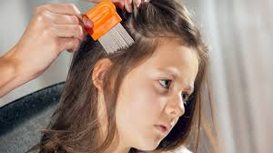 headlice everything you don u0027t want to know