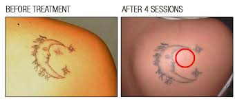 laser tattoo removal results melbourne richmond