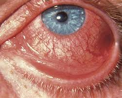 Light Pink Blood When I Wipe Conjunctivitis What Is Pink Eye American Academy Of Ophthalmology