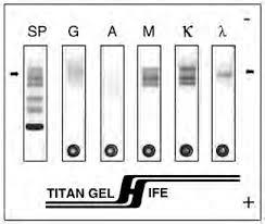 titan gel immunofix