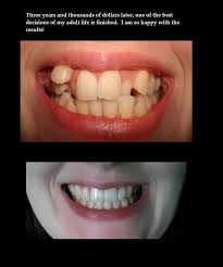 Braces Memes - adventures in orthodontia album on imgur