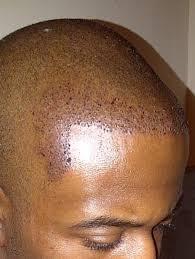 hairline restoration for black men introducing myself and my hair loss baldtruthtalk com