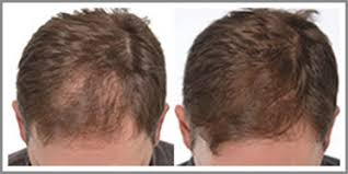 low level light therapy hair verified clinical trials of the igrow low level light therapy hair