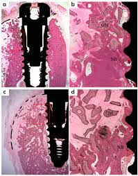 guided bone regeneration polymers free full text comparative efficacies of a 3d printed