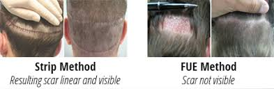 how thick is 1000 hair graft how costly is hair transplant quora