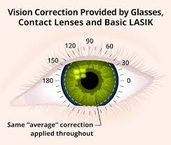 Can Lasik Cause Blindness Custom Wavefront Lasik Allaboutvision Com