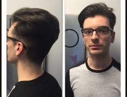 male hair extensions before and after gallery studio bc salon