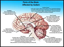 Which Part Of The Brain Consists Of Two Hemispheres Brain Functions In Intellectual Disabilities By Ashley Szczoczarz