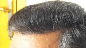 fue haircuts hair plantation beautiful fue hair transplant hair transplant