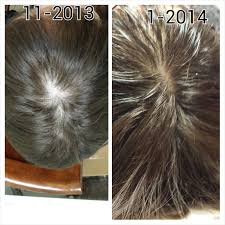 Platelet Rich Plasma Hair Loss Lose It Right Blog Hair Regrowth Treatments With Medical