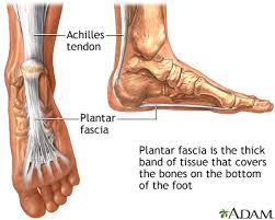 Planters Fasciitis Surgery by Plantar Fasciitis Medlineplus Medical Encyclopedia