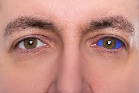 Can Lasik Cause Blindness Gene Therapy A Cure To Blindness That Is Here To Stay