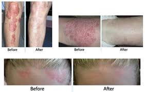light treatment for skin skin cancer treatment radiation therapy psoriasis treatment