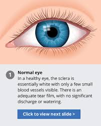 What Causes Eye Blindness Pink Eye Facts Identify Symptoms And Treat Pink Eye Conjunctivitis