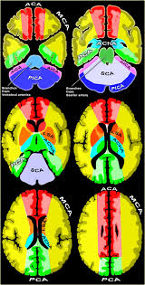 Vascular Anatomy Of The Brain The Radiology Assistant Brain Ischemia Vascular Territories