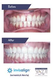beautiful before and after free teeth whitening with every