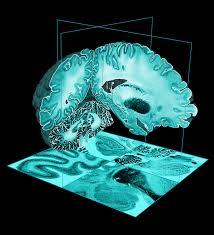 Brain Mapping Bigbrain U2013 Mcgill Centre For Integrative Neuroscience