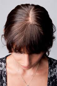 hairr styles for woman with alopica female hair loss solutions hair loss treatment for women