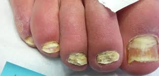 laser treatment for fungal nail infection a u0026a podiatrists and