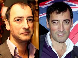 antony cottons hair transplant alistair mcgowan hair transplant has the impressionist had