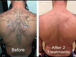 laserless tattoo removal review 6 free bonuses youtube