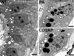 rapid screening of glomerular slit diaphragm integrity in larval