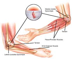 Tendons In The Shoulder Diagram How To Fix Elbow Tendonitis Posture Direct