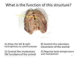 Human Ear Anatomy Quiz Anatomy Quiz