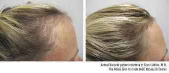 hair burst complaints viviscal hair growth program extra strength tablets walgreens